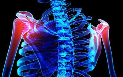 Diseases & Conditions – Shoulder